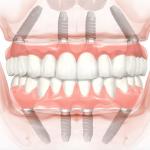 Dental Implant Statistics