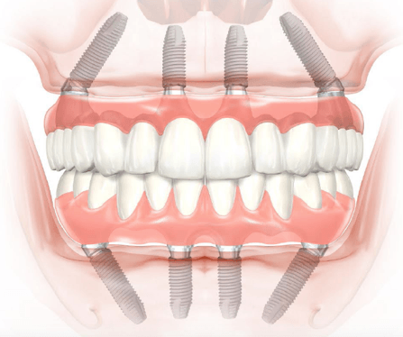 dental implant statistics and facts 2020-2021, 2019